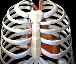 coupe apicale 4 cavités