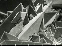 Rasterelektronenmikroskopische_Abbildung_der_Oberfläche_eines_Nierensteins