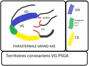territoire-coronariens-vg-psga